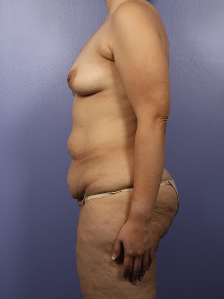 After Weight Loss Before & After Image