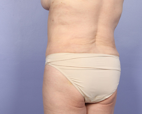 Tummy Tuck Before & After Image