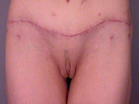 Labiaplasty Before & After Image