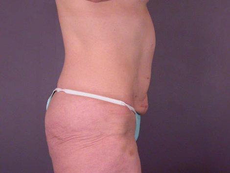 Body Lift Before & After Image
