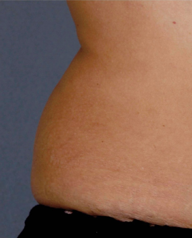Liposonix� Before & After Image