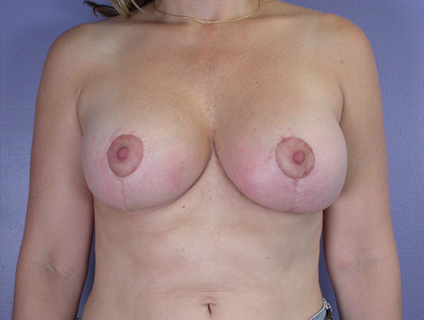 Nipple - Areola Correction