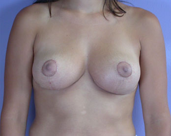 Nipple - Areola Correction Before & After Image