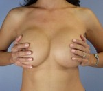 Nipple - Areola Correction