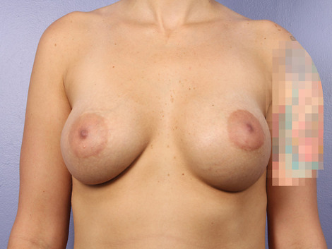 Breast Implant Correction Before & After Image