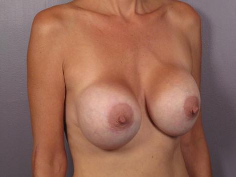 Breast Implant Correction