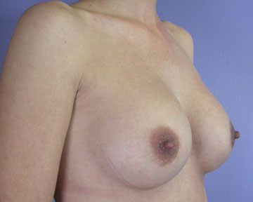 Breast Implant Correction