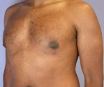 Breast Reduction (for Men)