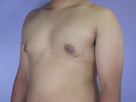 Breast Reduction (for Men) Before & After Image