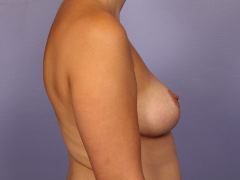 Breast Asymmetry Correction Before & After Image