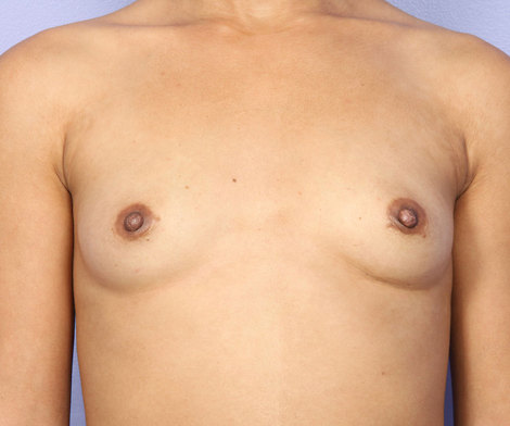 Nipple - Inversion Correction Before & After Image