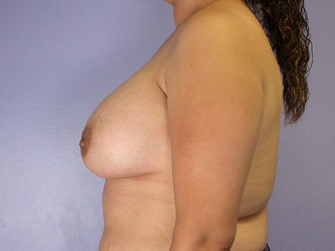 Nipple - Inversion Correction