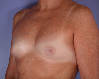 Nipple - Inversion Correction