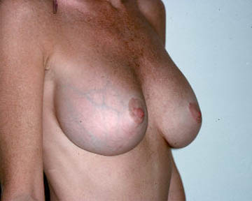 Breast Implant Removal Before & After Image
