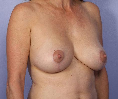 Breast Asymmetry Correction