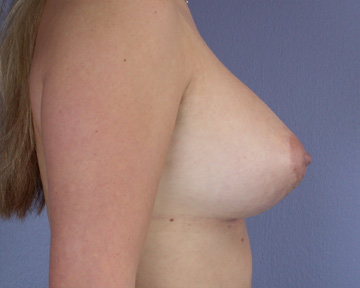 Breast Lift with Augmentation Before & After Image