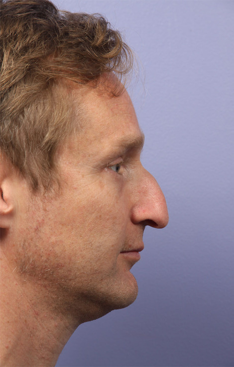 Nose Reshaping