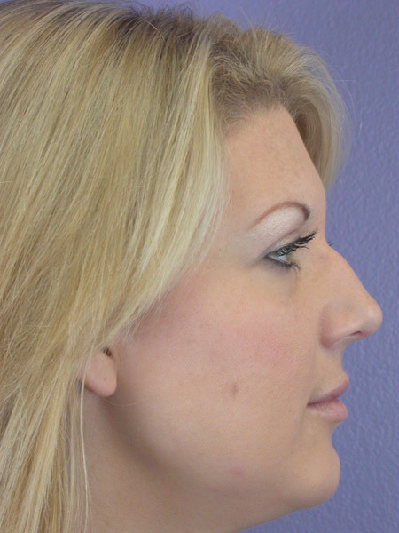Nose Reshaping Before & After Image