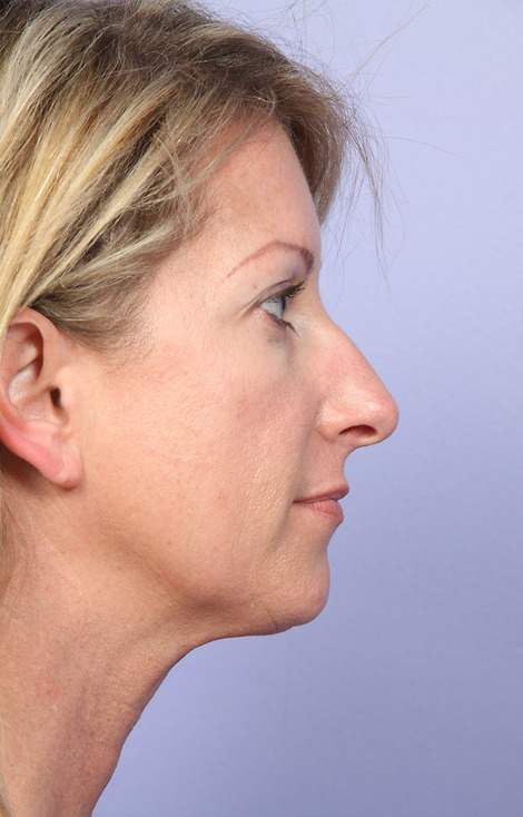 Cheek/Chin Shaping Before & After Image