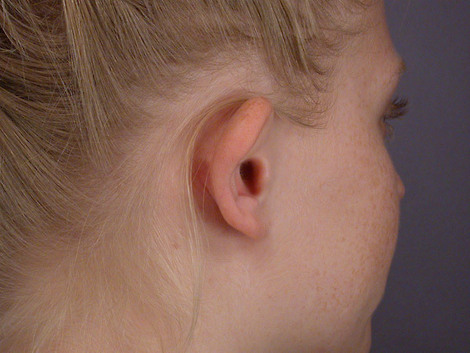 Ear Surgery Before & After Image