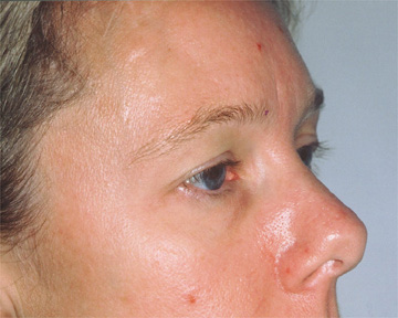 Forehead Lift (Browlift) Before & After Image