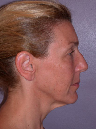 Facelift Before & After Image