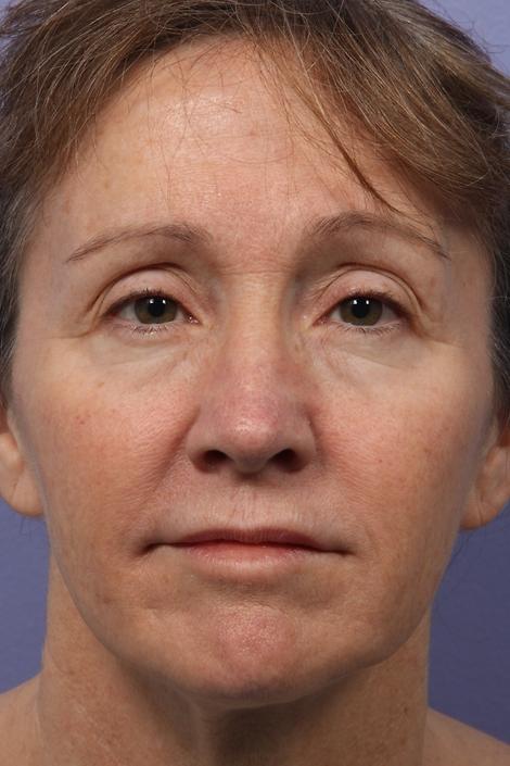 Facelift Before & After Image