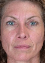 ThermaCool Non-Surgical Facelift