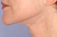 ThermaCool Non-Surgical Facelift Before & After Image