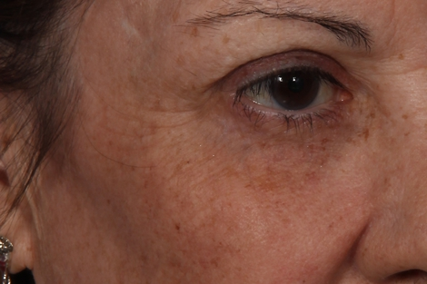 Fraxel� Before & After Image