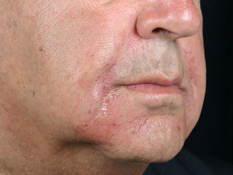 Wrinkle Reduction Before & After Image
