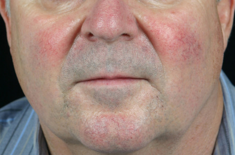 Vein Treatment Before & After Image