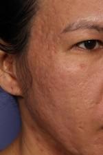Laser Skin Resurfacing