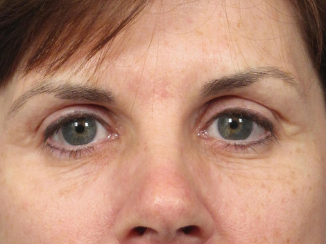 Skincare & Makeup Before & After Image