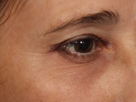 Thermage� Before & After Image
