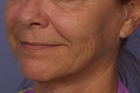 Sculptra Before & After Image