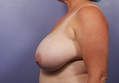Breast Reduction (for Women)