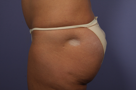 Fat Grafting Before & After Image