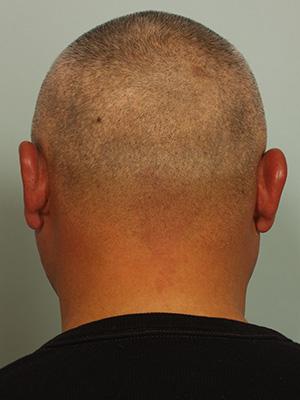 Hair Restoration by NeoGraft®