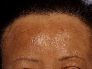 Chemical Peels Before & After Image