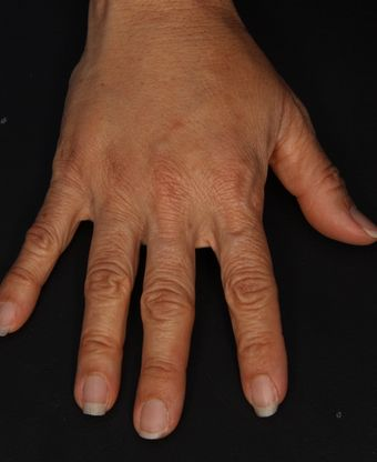 Photo of hand after Radiesse was injected into it
