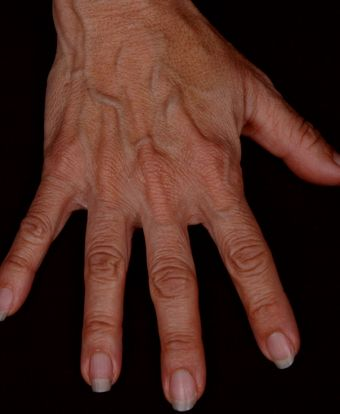 Photo of hand before Radiesse was injected into it