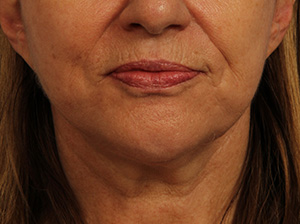 Ultherapy Before & After Image