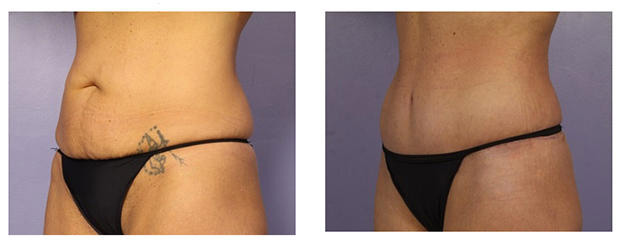 8 Things You Should Know About A Tummy Tuck—From Someone Who