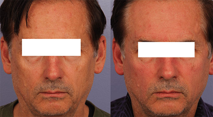 Halo Laser Treatment Before and After Photo