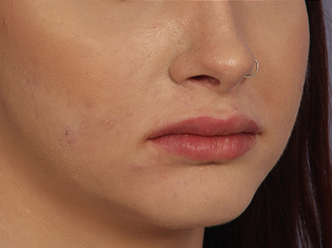 Lip Augmentation Before & After Image