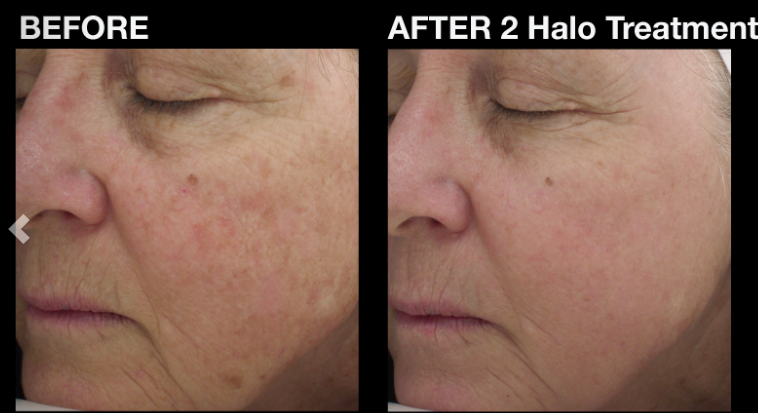 I Had the HALO Laser Treatment, Here's What Happened
