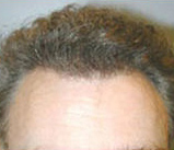 Hair Restoration by NeoGraft®