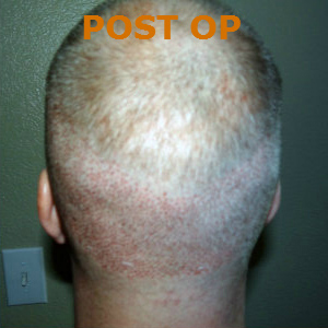 Hair Restoration by NeoGraft® Before & After Image