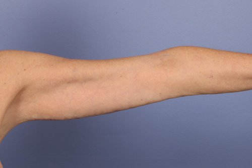 Arm Lift Before & After Image